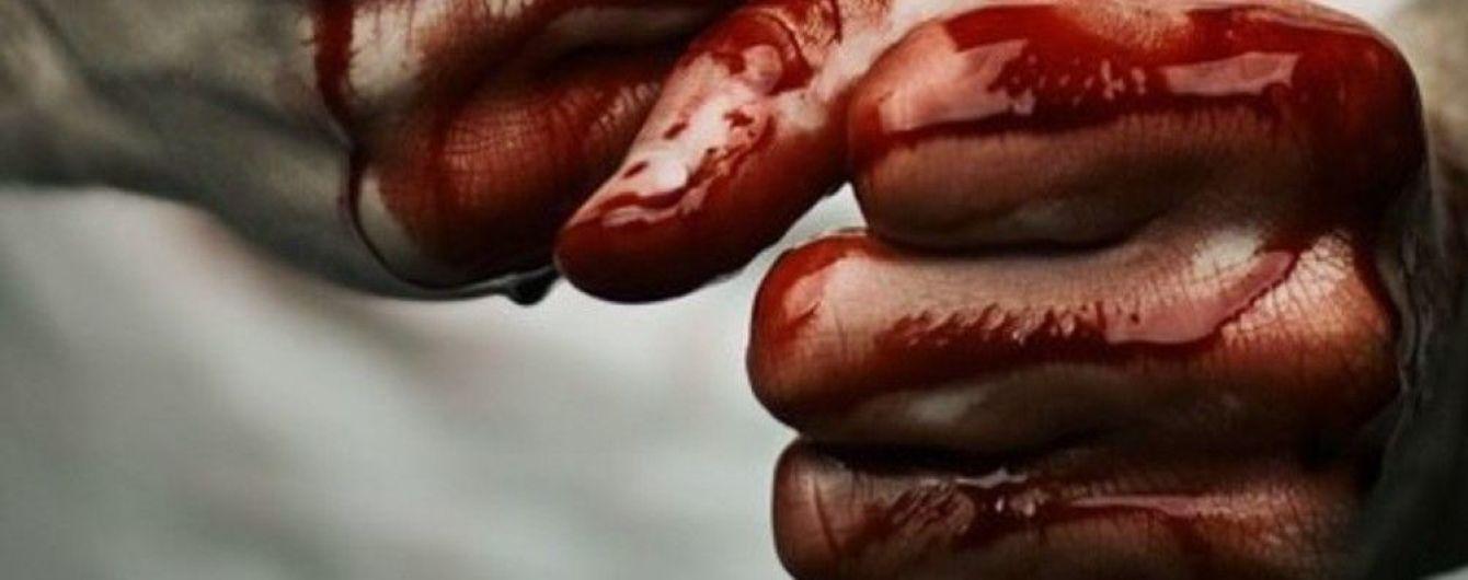 У Запоріжжі школярки гуртом жорстоко побили дівчинку