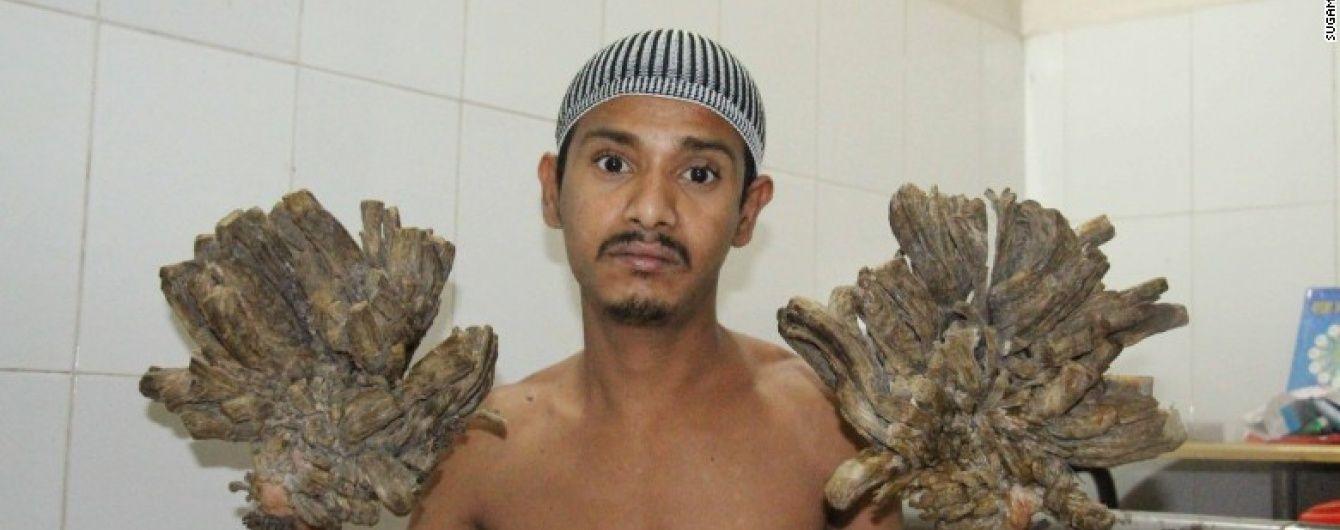"""У Бангладеш лікарі провели унікальну операцію """"Людині-дереву"""""""