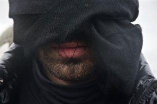 """У Франції мігранти зашили собі роти на знак протесту проти знесення """"джунглів"""" у Кале"""