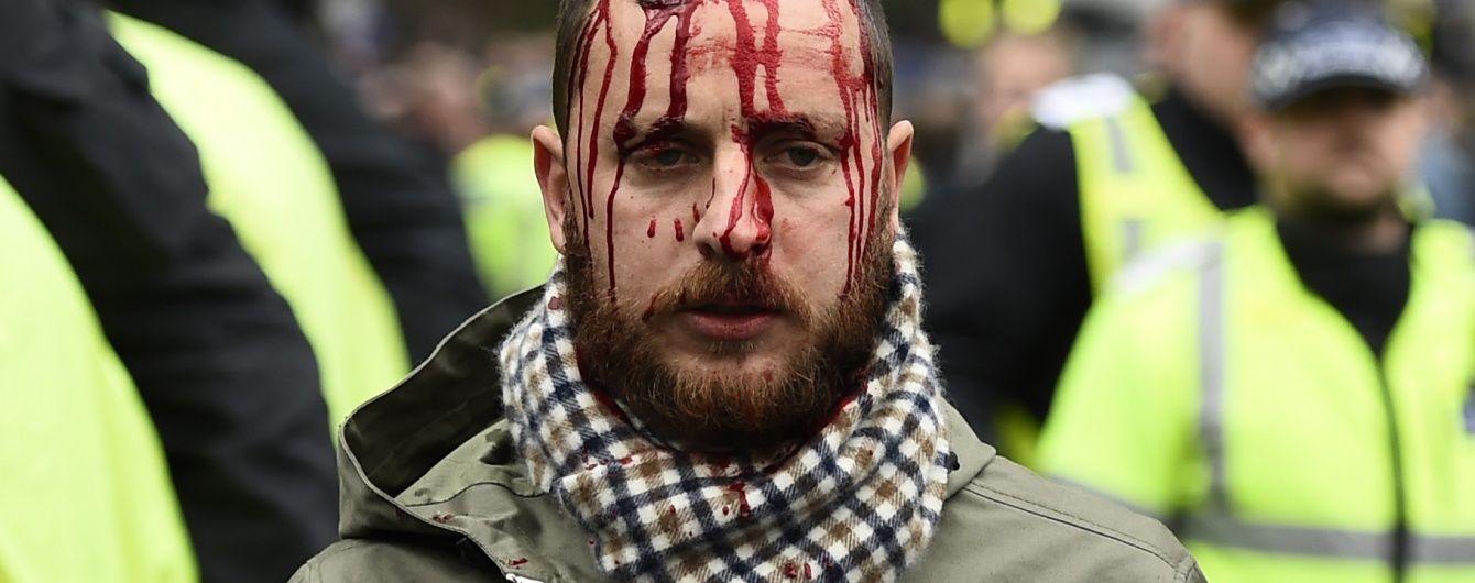 """Лондонському дербі """"Тоттенхема"""" і """"Арсенала"""" передувала масова бійка"""