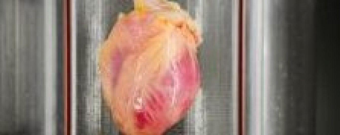 Дослідження довели, що зараз найризикованіший час через серцеві напади