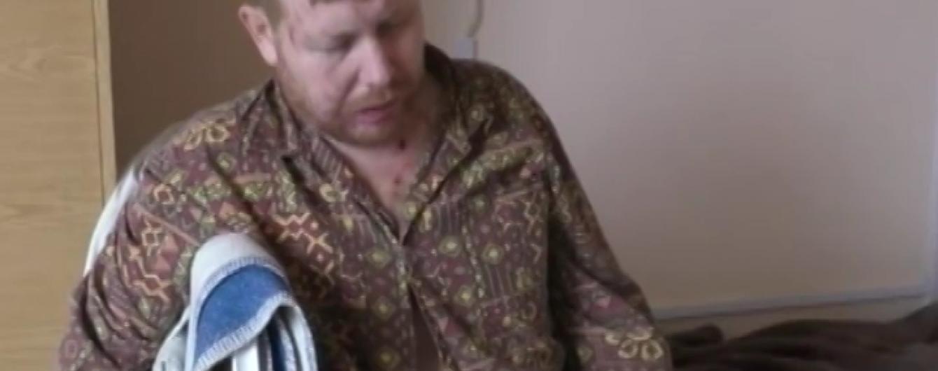 """Боевики """"ЛНР"""" удерживают в плену покалеченного человека без рук"""