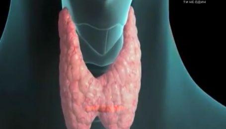 Почти все дети Украины имеют патологию щитовидной железы