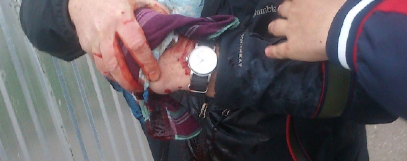 В Одесі на проросійському мітингу пролунав вибух