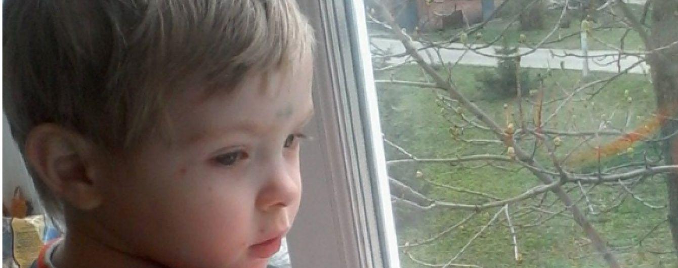 Негайної допомоги потребує трирічний Павло