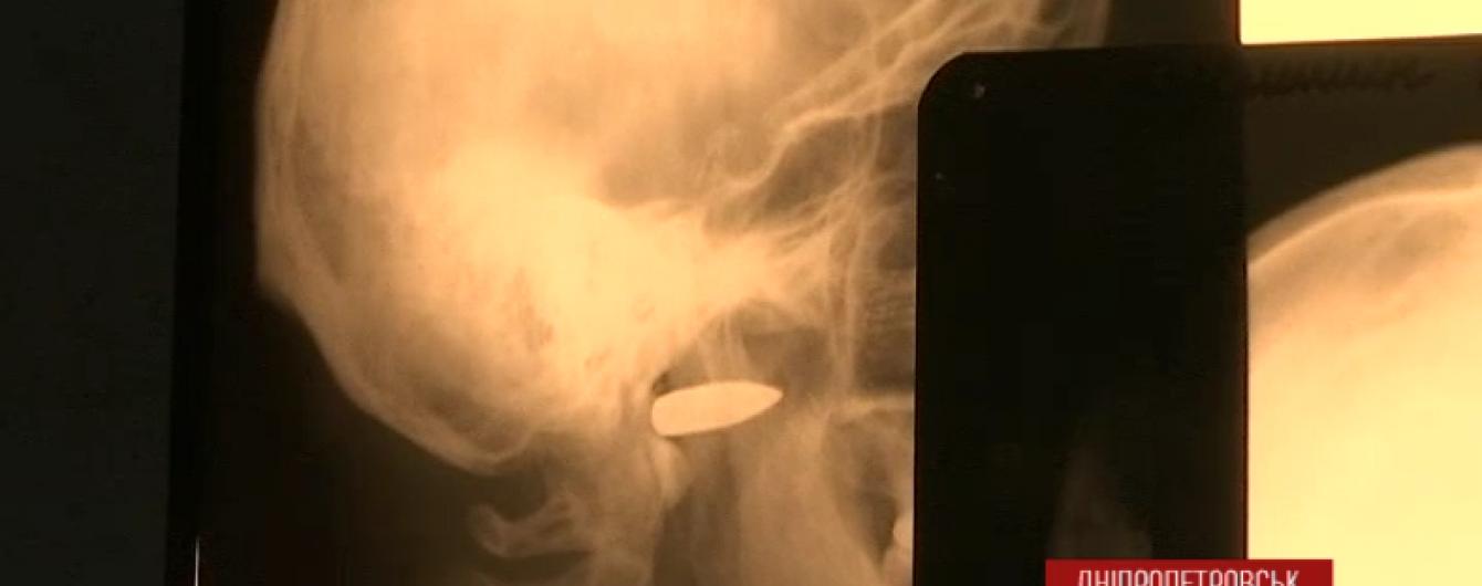 Моторошні подробиці поранення бійця АТО: куля снайпера заглибилася на 10 см у голову
