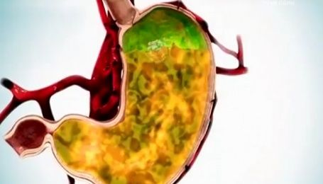 Як попередити виникнення печії