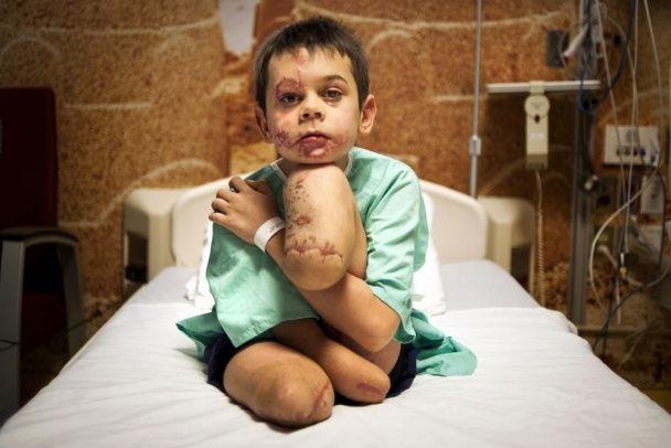 Щемливе фото хлопчика, який втратив на Донбасі ноги та руку, перемогло у міжнародному конкурсі