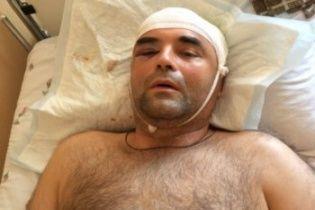 """Екс-офіцер МВС розповів, як його з """"героя кримської весни"""" перетворили на злочинця в РФ"""
