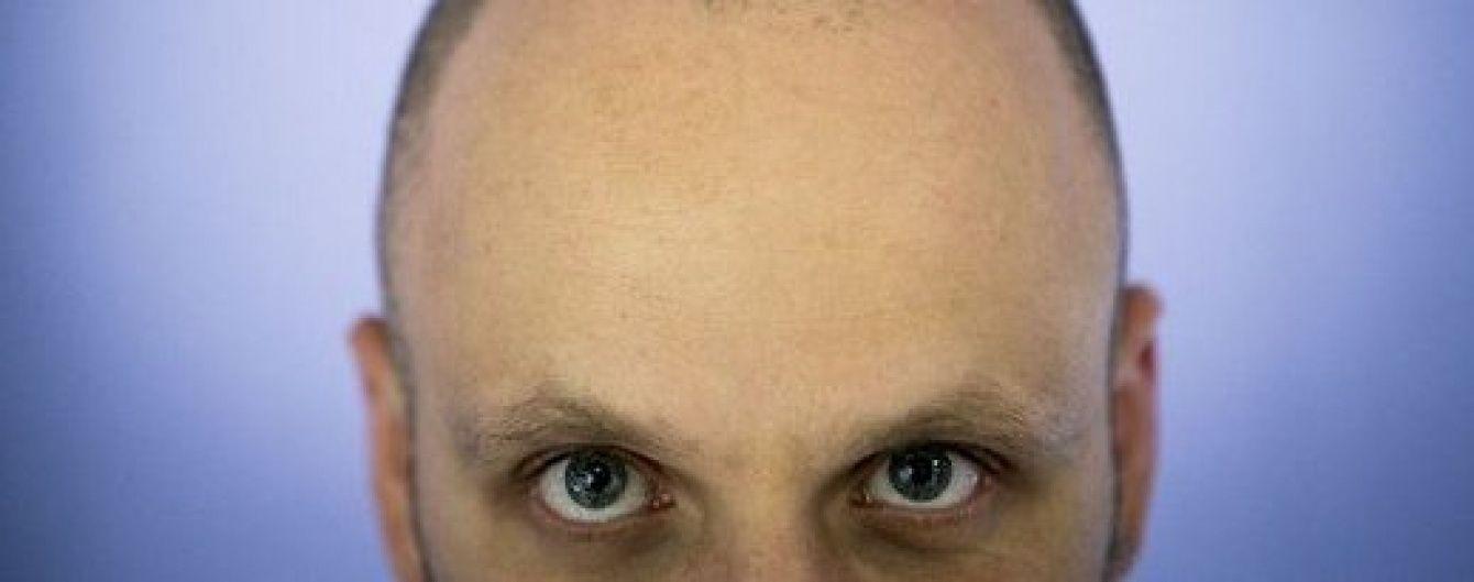День голомозих у Раді: як нардепи ставляться до тотальної втрати волосся