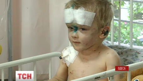 В Одессе на улице нашли маленького мальчика со следами неоднократных побоев