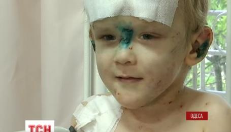 Полиция ищет семью найденного в Одессе избитого мальчика