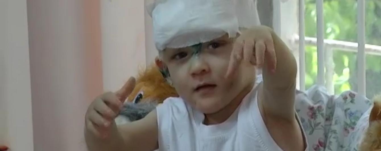 Побитому одеському хлопчику-знайді знадобиться пересадка шкіри