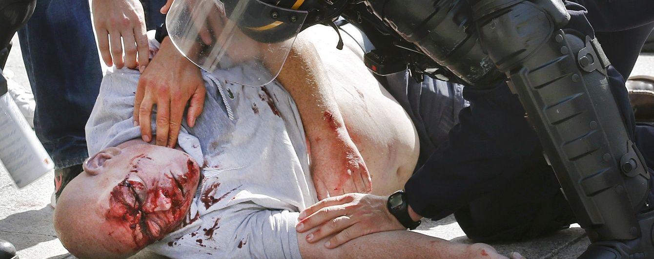 Англійський фанат перебуває при смерті після брутального нападу росіян у Марселі