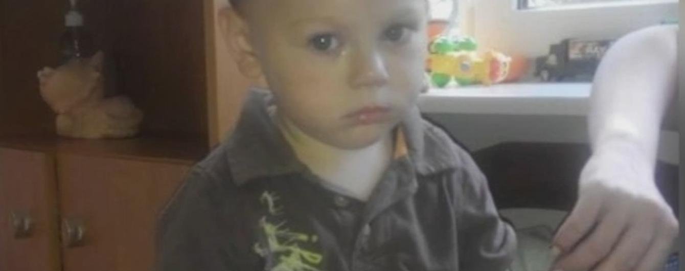 В Одесі знайшли ще одного побитого малюка