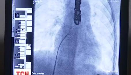 """Трьом маленьким українцям інноваційно """"полатали"""" серце без розтину грудної клітини"""