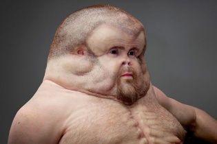Лікарі та вчені створили людину-мутанта, невразливу у ДТП