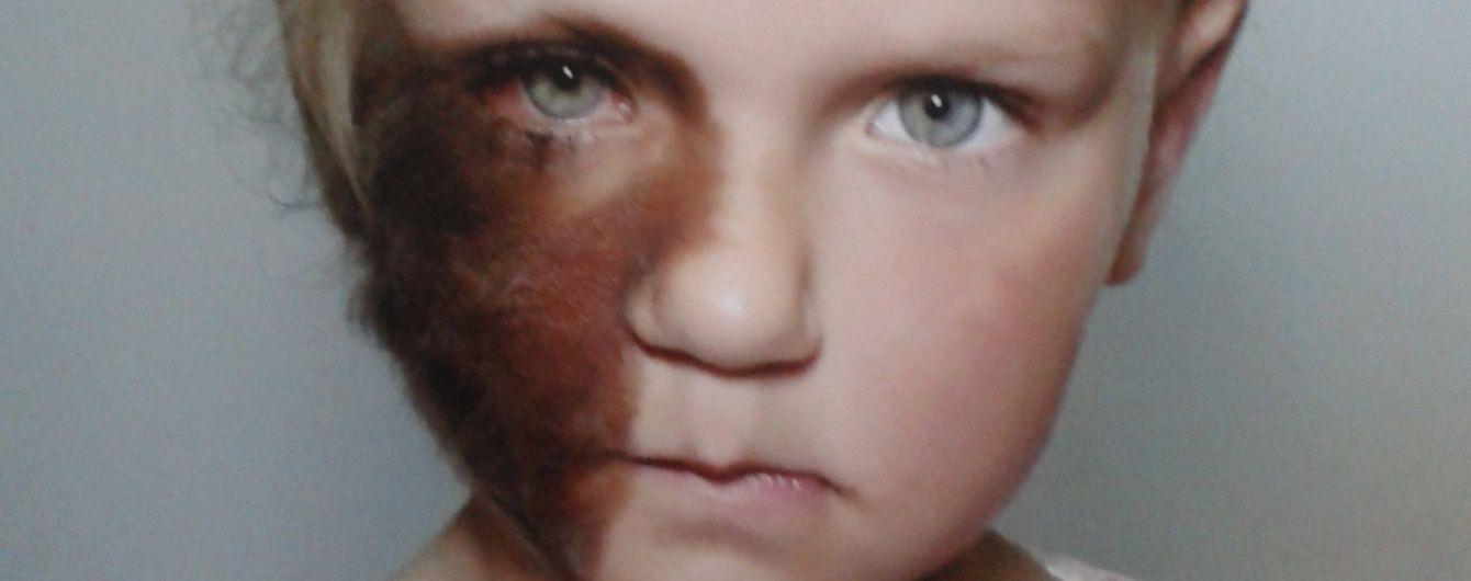 Допоможіть 5-річній Евеліні позбутися меланозу обличчя
