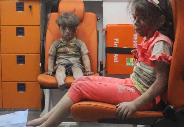 Обличчя війни. 5-річний малюк з моторошних фото атаки у Сирії не пролив жодної сльози
