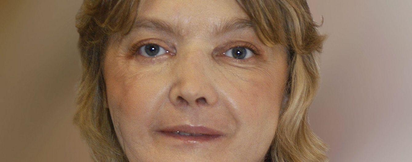 Померла перша у світі людина із трансплантованим обличчям