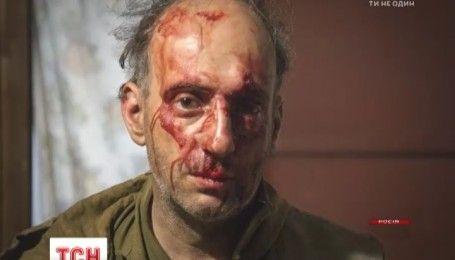 """У Росії жорстоко побили представників """"Грінпісу"""""""
