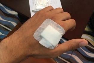"""В Одесі двоє добровольців стали """"кіборгами"""" після вшиття під шкіру імпланта"""