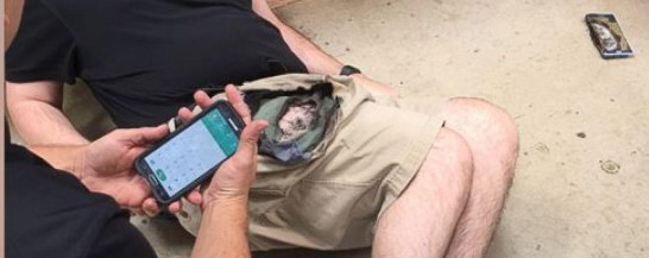 Сильные ожоги и продырявленные шорты. SAMSUNG NOTE 7 взорвался в кармане американца