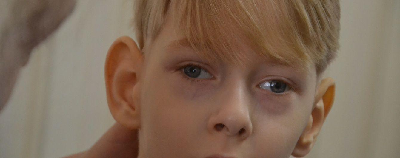 Допоможіть 5-річному Артурчику одужати