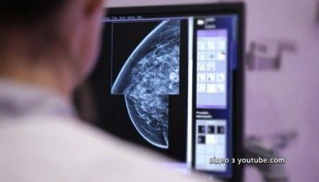 """""""Сніданок"""" провел исследование к Всеукраинскому дню борьбы с заболеванием раком груди"""