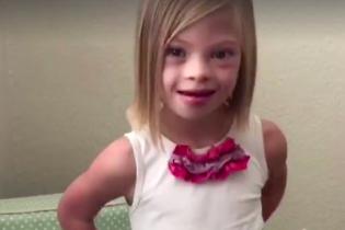 Українка з синдромом Дауна, яку удочерила американська сім'я, стала зіркою у США