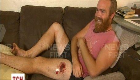 Австралийский серфингист выжил после нападения акулы