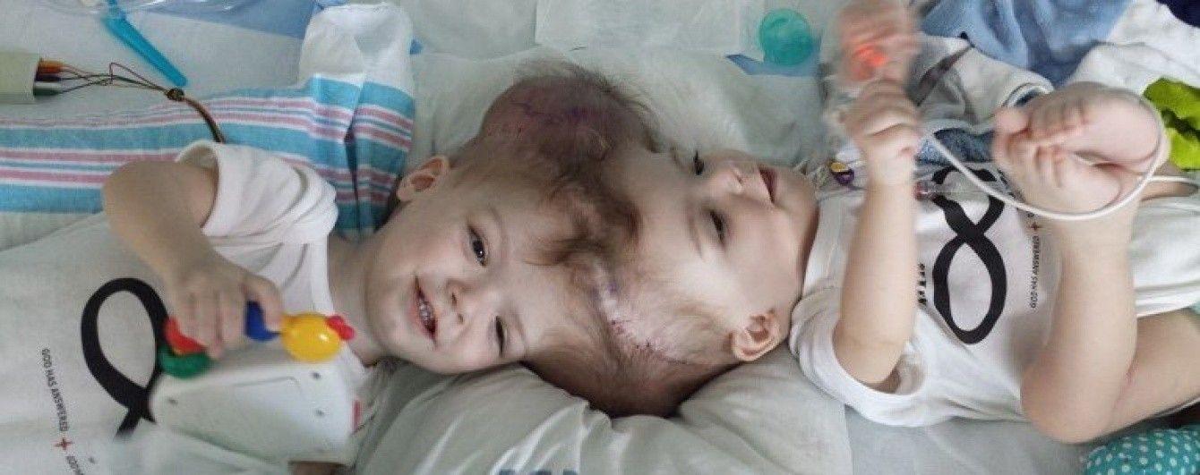 Юзерів зворушила фотографія роз'єднаних сіамських близнюків, які вперше побачили один одного