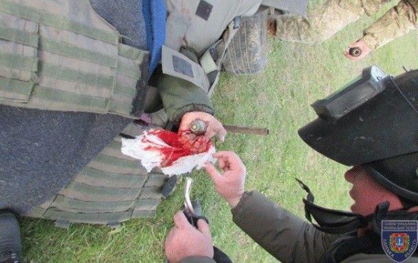 На Одесском полигоне курсанту пробило руку боеприпасом