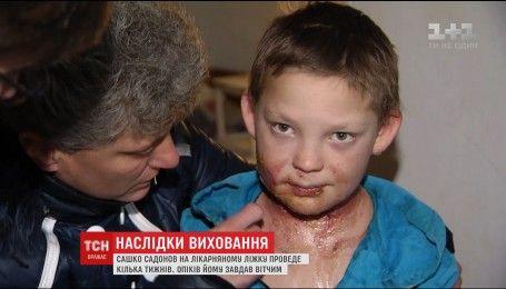 В ожоговом отделении Киевской больницы обследовали Сашу Садонова, которого жестоко воспитывал отчим