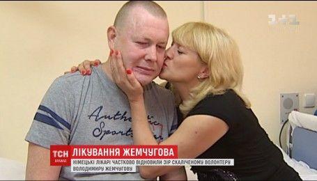 Немецкие врачи дали надежду на выздоровление украинцу, который в АТО потерял зрение и руки