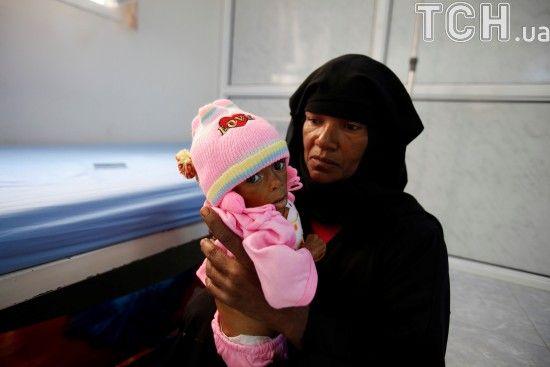 У Ємені на холеру захворіло вже понад 600 тисяч осіб - ООН