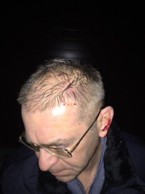 Пашинский через сутки после инцидента рассказал о подробностях нападения