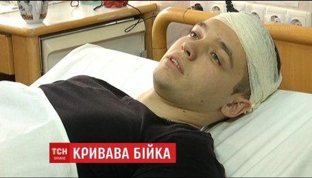 В Краматорську поліцейський врятував від хуліганів чоловіка і отримав сокирою по голові