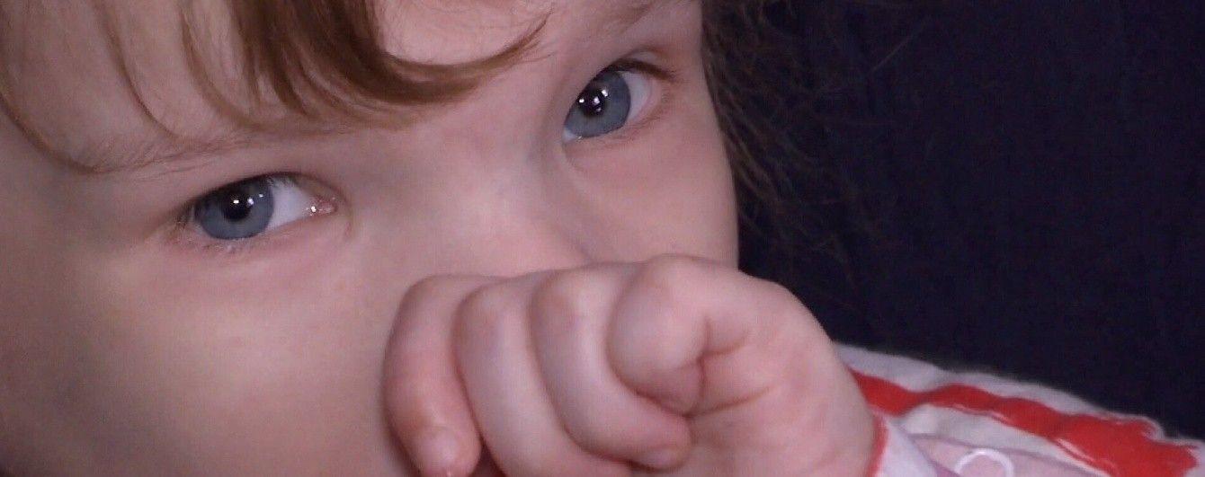 Дівчинка-дюймовочка Настя з Чернігівщини потребує допомоги