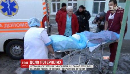 Из Одессы в Киев перевозят мать с сыном, пострадавших во время пожара