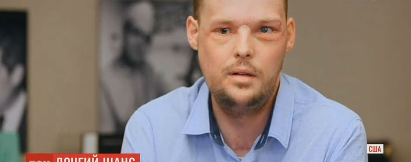 Хірурги США пересадили обличчя чоловіку після його невдалого самогубства