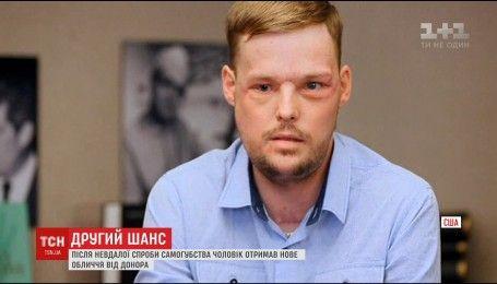 Американські хірурги провели надскладну операцію з пересадки обличчя