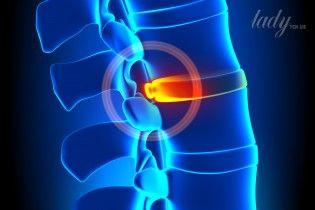 Грыжа межпозвоночного диска: нужна ли операция?