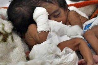 Лікарі взялися відокремити сіамських близнюків, які зрослися головами