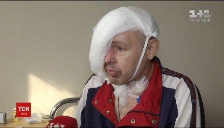 Столичные хирурги спасли жизнь мужчине, у которого до костей выгорела половина головы