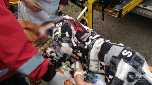 На Днепропетровщине подростки избили до полусмерти и подрезали 14-летнего школьника