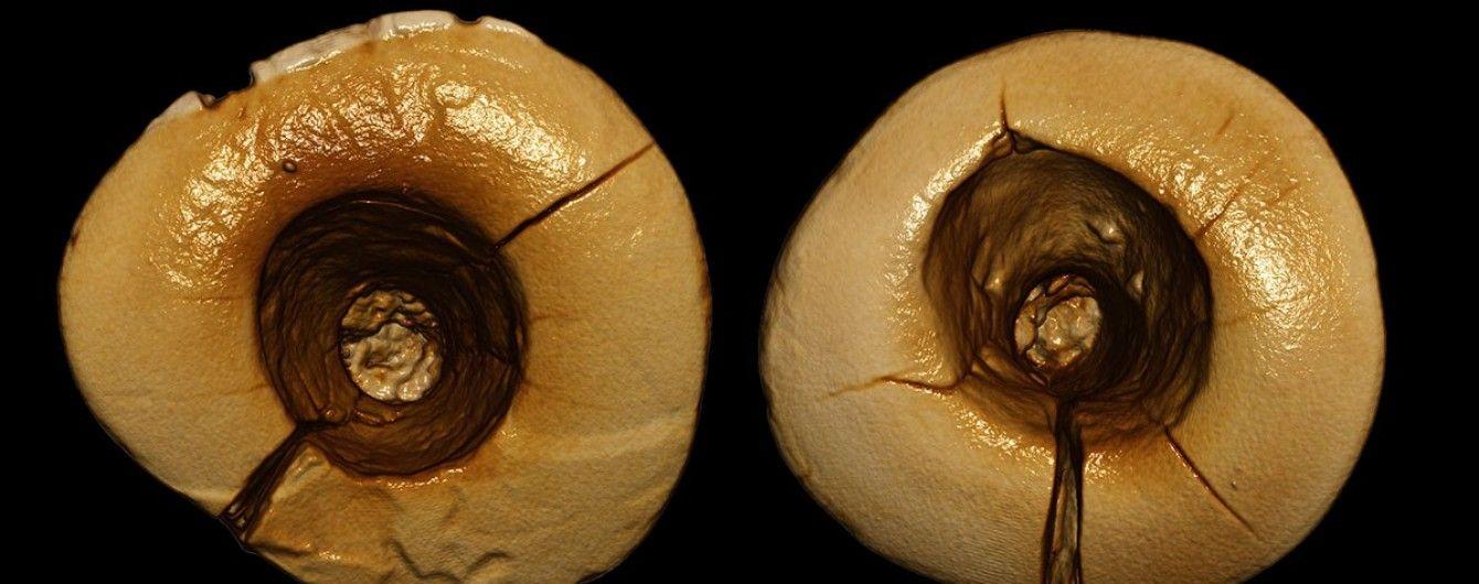 Археологи знайшли зубні пломби, яким 13 тисяч років