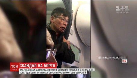 У США з літака винесли пасажира з розбитою губою
