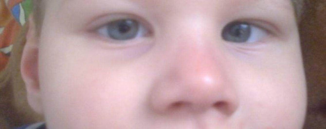 5-річний Богданчик сподівається на допомогу