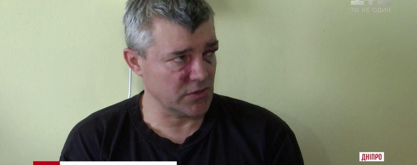 Пострадавший 9 мая в Днепре АТОшник лежит в больнице с ЧМТ и переломом носа